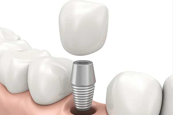 dental implant restoration dresher pa 19025