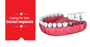 Caring for Your Dental Implants