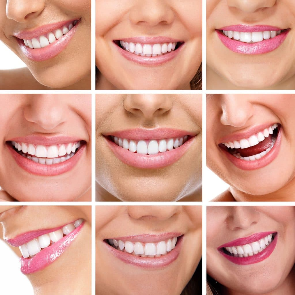 cosmetic dentist Churchville PA 18966
