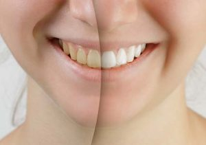 The Effects of Smoking on Your Teeth fort washington